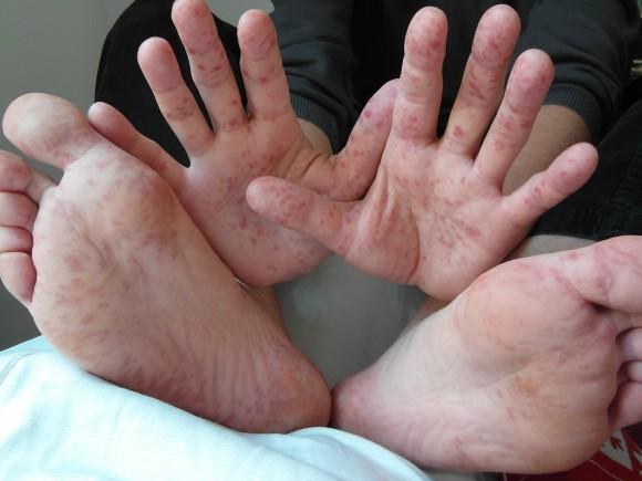 Ein Erwachsener präsentiert Bläschen und rote Flecken auf Handflächen und Fußsohlen bei Hand-Fuß-Mund-Krankheit