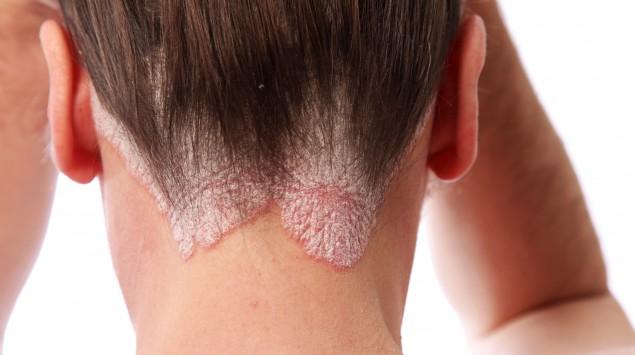 Eine Frau hat Schuppenflechte am Hinterkopf
