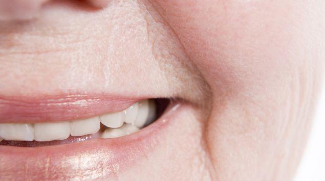 Nahaufnahme einer Nasolabialfalte bei einer lächelnden Frau