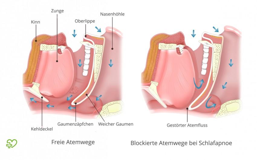 Wenn im Schlaf die Muskulatur am Gaumen erschlafft, sind bei Schlafapnoe die Atemwege blockiert (rechts).
