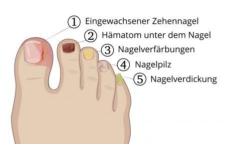 Jede Erkrankung der Zehennägel benötigt eine eigene Form der Behandlung – vom Fußpilz bis zu eingewachsenen Zehennägeln.
