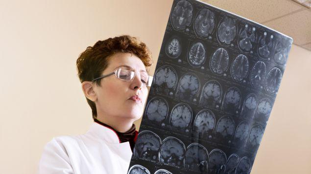 Eine Ärztin betrachtet das CT-Bild eines Schädels.