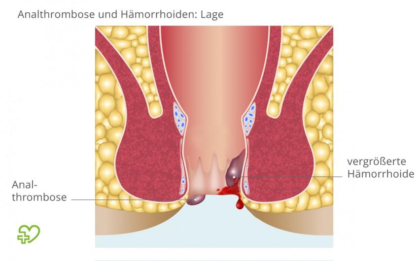 Eine Analthrombose entsteht am Analrand, vergrößerte Hämorrhoiden befinden sich dagegen im Inneren des Afters.