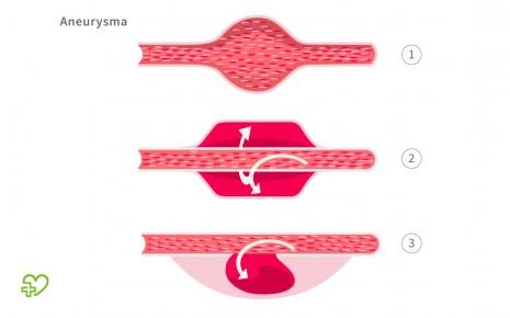 Aneurysma-Formen: Aneurysma verum (1), Aneurysma dissecans (2) und Aneurysma spurium (3)