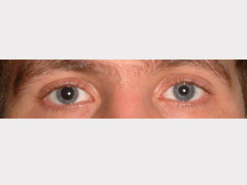 Anisokorie: Man sieht einen Augenpartie mit ungleich großen Pupillen.