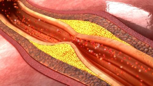 Die schematische Darstellung zeigt einen Längschnitt durch ein Blutgefäß, das durch Arteriosklerose verengt und verdickt ist..