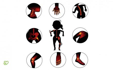Grafische Darstellung der Gelenke, in denen Arthrose auftreten kann.