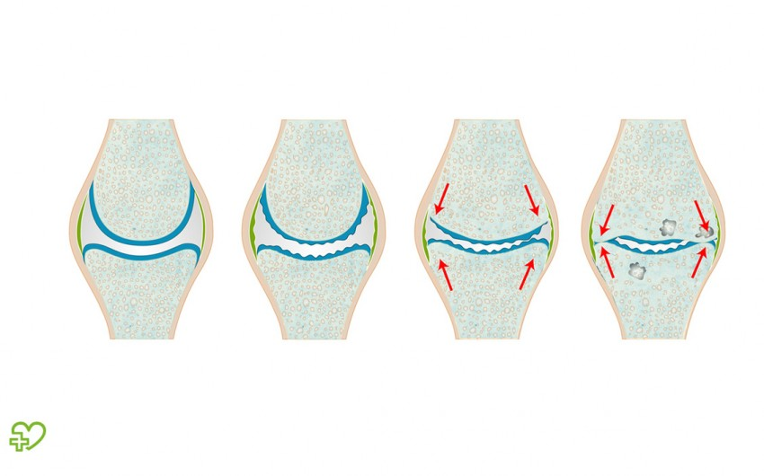 Knorpelabbau: Mit zunehmendem Alter nutzt sich der Gelenkknorpel (hier im Knie, blau) ab und wird dünn und rissig – bis die Knochen aufeinander reiben und Schmerzen verursachen.