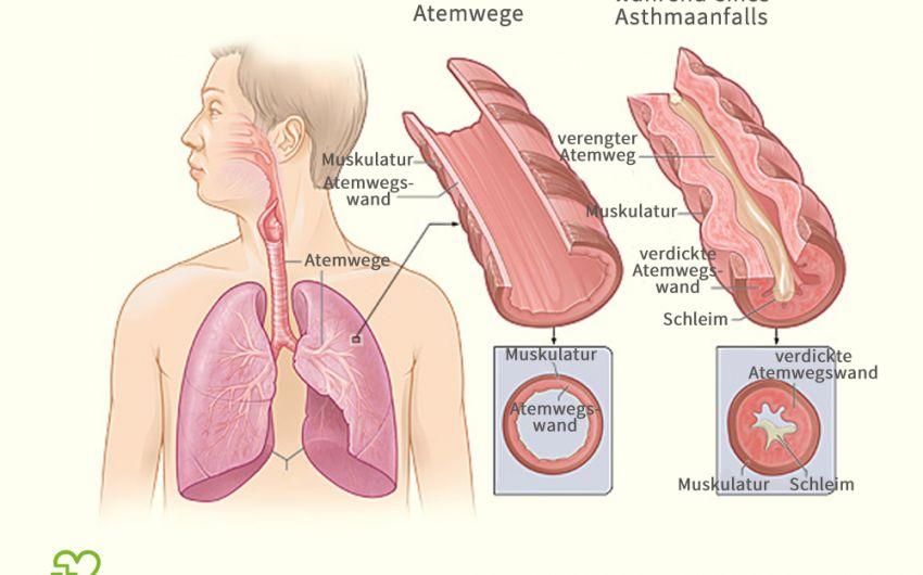 Eine grafische Darstellung der Atemwege bei Asthma bronchiale.