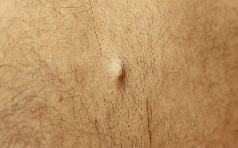 Bild eines Atheroms: Ein Atherom macht sich durch einen Knoten unter der Haut bemerkbar, der bis zu mehrere Zentimeter groß werden kann.