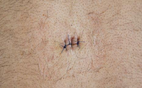 Ein Atherom kann der Arzt in einem kleinen chirurgischen Eingriff herausoperieren.