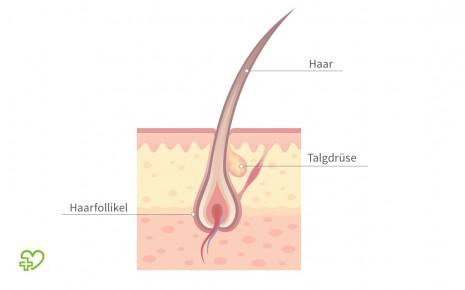 Jedes Haar wird über eine Talgdrüse mit Talg versorgt. Ist der Zugang verstopft, kann sich ein Grützbeutel entwickeln.