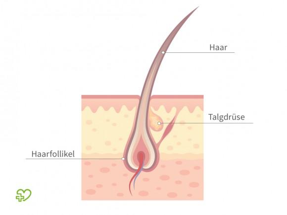 Von der Akne inversa sind Haarfollikel betroffen, die sogenannte Terminalhaare enthalten. Darunter versteht man die gut sichtbaren pigmentierten, kräftigen Haare – im Gegensatz zu den Wollhaaren, die kaum sichtbar und deutlich feiner und flaumartig sind.