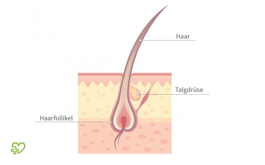 Haarfollikel sind die kleinen Hautausstülpungen, in denen jedes einzelne Haar verankert ist. Beim erblichen bedingten Haarausfall schrumpfen sie mit der Zeit.