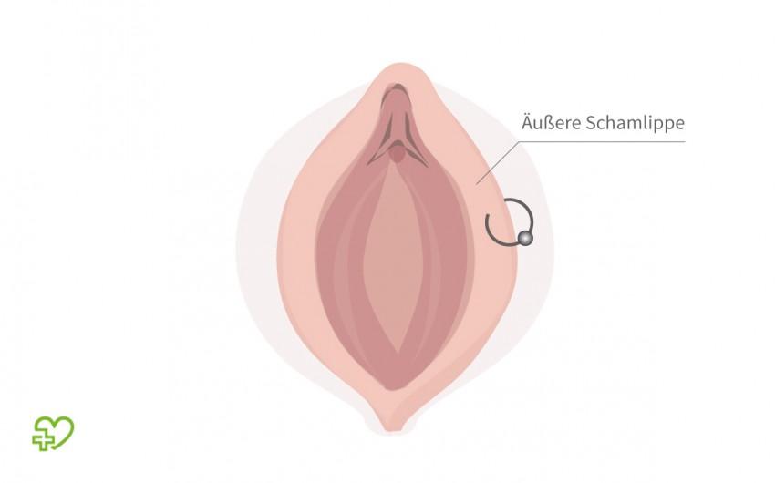 Grafische Darstellung: Intimpiercing an der äußeren Schamlippe