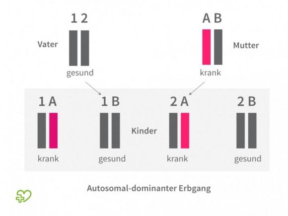 Darstellung eines autosomal-dominanten Erbgangs.