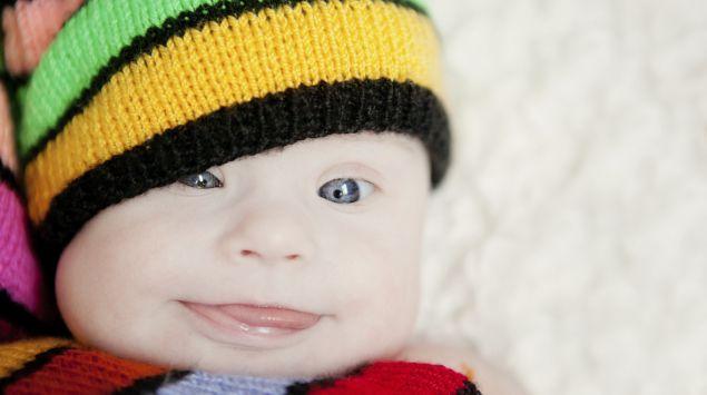 Man sieht ein Baby mit Down-Syndrom.
