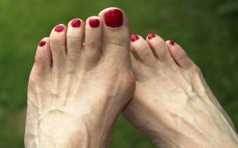 Füße mit Ballenzehen (Hallux valgus)