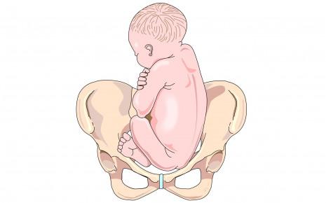 Position des Babys in Beckenendlage