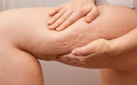 Eine Frau quetscht ihr linkes Bein mit beiden Händen zusammen: Bei einem Lipödem sieht die Haut anfangs Cellulite-ähnlich aus.