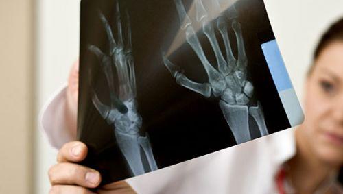 Ein Arzt betrachtet zusammen mit einer Kollegin ein Röntgenbild.