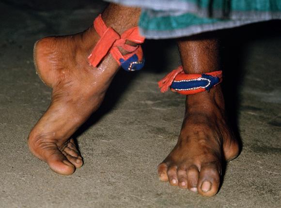 El hongo en los pies el tratamiento ekzoderilom