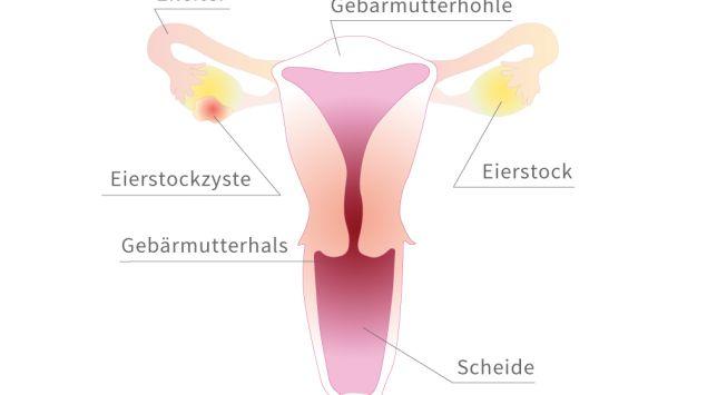 Grafische Darstellung der Eierstöcke mit einer Zyste.