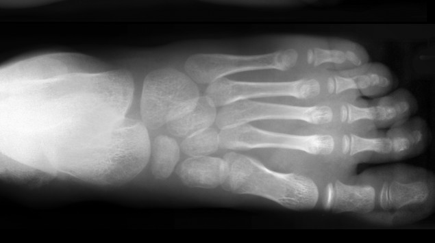Röntgenbild Fuß
