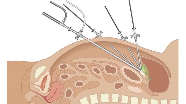 Das Bild stellt die Entfernung einer Gallenblase grafisch dar.