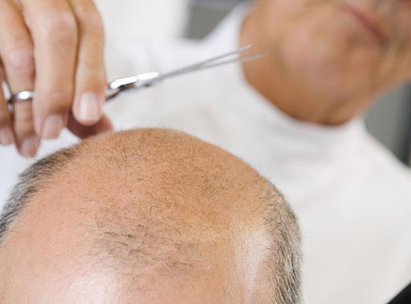 El aceite de coco la aplicación en la cosmetología para la persona y el cabello las revocaciones