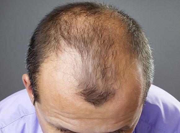 Das schnelle Mittel gegen den Haarausfall