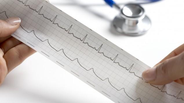 Das Bild zeigt einen Arzt, der eine EKG-Aufzeichnung untersucht.