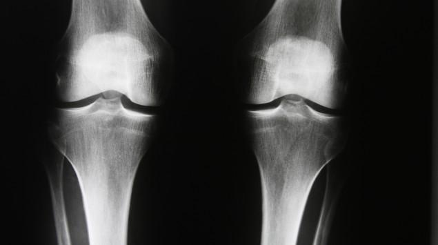 Röntgenbild Knie