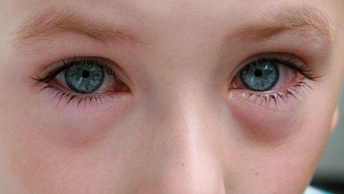 Man sieht ein Kind mit tränenden, geröteten Augen.