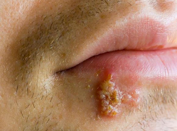 Das Bild zeigt eine ausgeprägte Form von Lippenherpes an der Unterlippe.