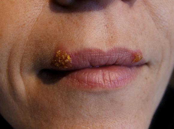 Das Bild zeigt Herpesbläschen an der Oberlippe einer Frau.
