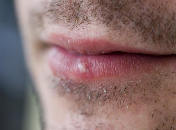 Das Bild zeigt einen Mann mit Lippenherpes an der Unterlippe
