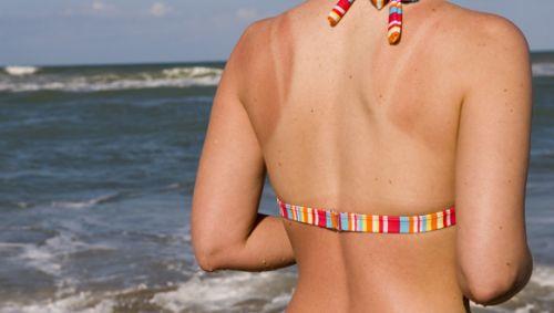 Das Bild zeigt eine junge Frau mit einem Sonnenbrand auf dem Rücken.