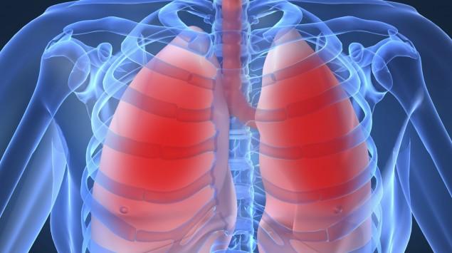 Das Bild zeigt eine Lunge.