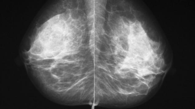 Man sieht eine Mammographie-Aufnahme.