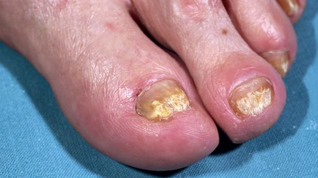 Das Bild zeigt einen Fuß, der von Nagelpilz betroffen ist.