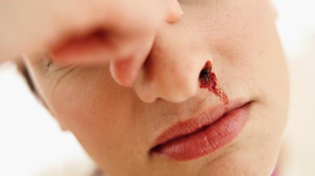 Eine Frau hat Nasenbluten.
