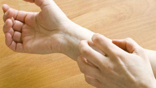 Das Bild zeigt eine Person, die sich am Arm kratzt.