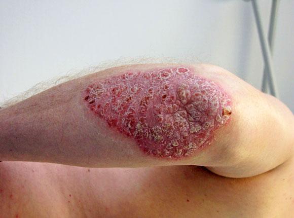 Samarowka bei der Behandlung gribka der Nägel