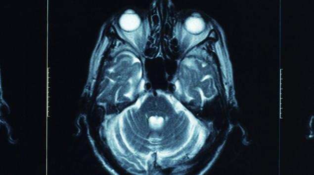CT-Aufnahme Schädel
