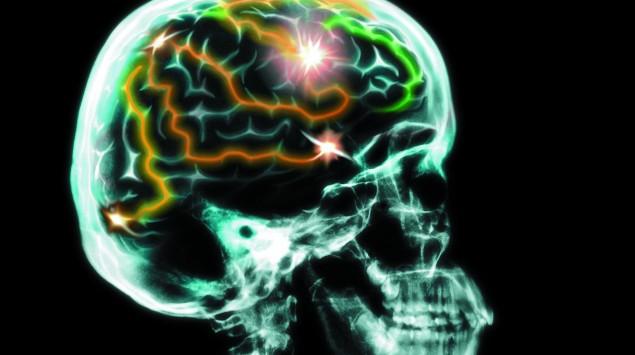 Ein schematisches Gehirn mit Gehirnakivität.