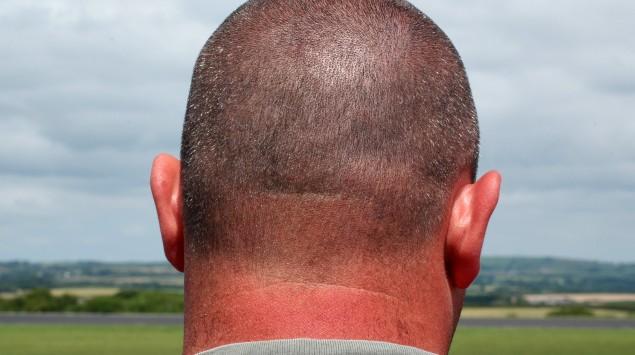 Das Bild zeigt einen Mann im Wasser mit einem Sonnenbrand am Kopf.