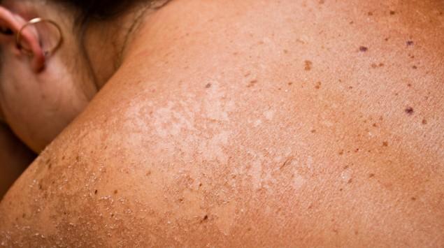 Das Bild zeigt den Rücken einer Frau nach einem Sonnenbrand.
