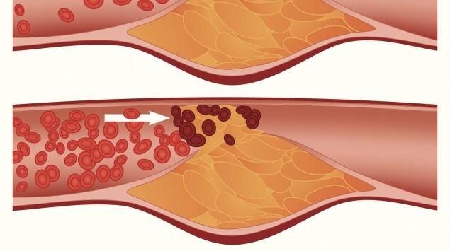 Infografik der Entstehung eines Blutgerinnsels