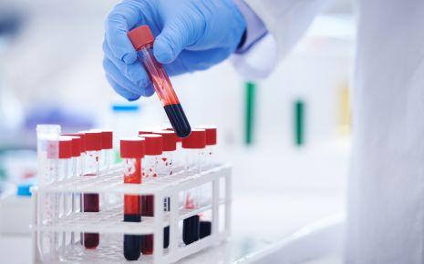 Die wichtigsten Leberwerte werden aus einer Blutprobe gewonnen.